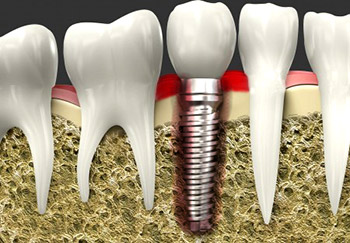 Dental Implant Problems and Treatment