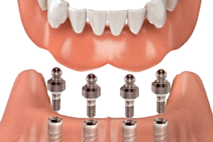 Implant-Supported Dentures & Options for Missing Teeth