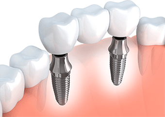 Implant Options for Missing Teeth